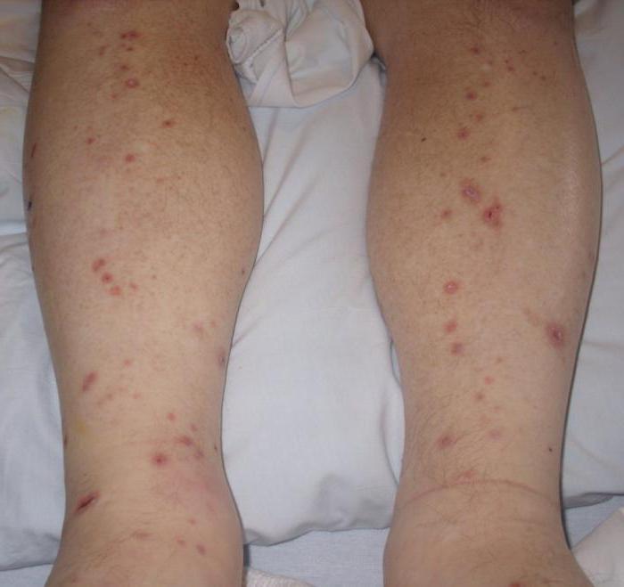 Как отличить экзему от псориаза как избавиться от обоих заболеваний